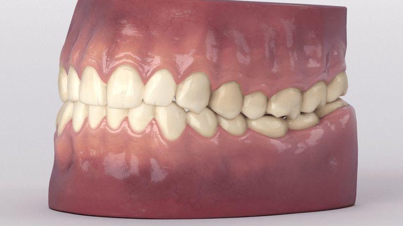 Modello di dentatura 3D da scaricare gratuitamente